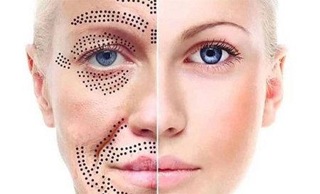 Plasma Lift Anti-aging behandeling